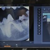 Røntgen tænder